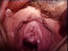 Bizarre Penetrations - Fuck And Cream Pie In Urethra
